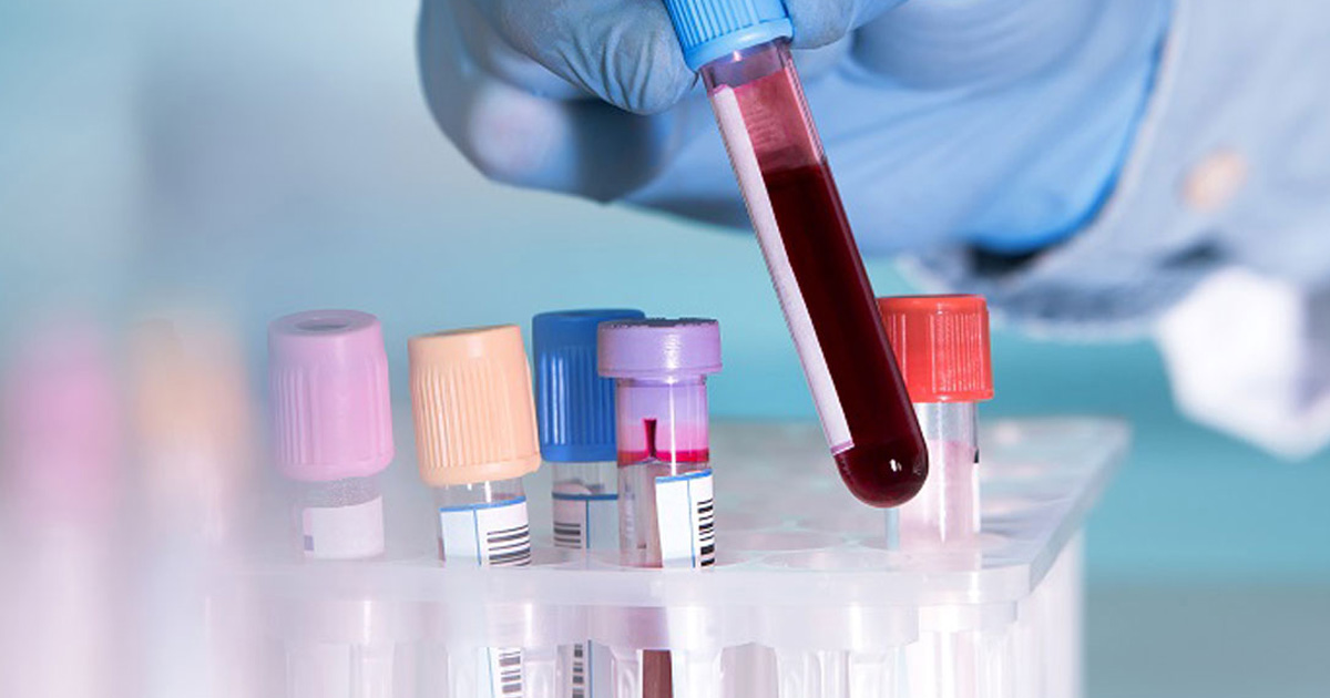 How a simple blood draw may predict IPF survival