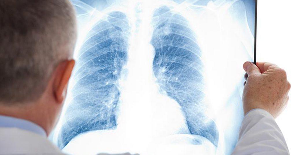 Basics of Chest X-Rays